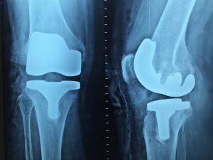 pakiet-ortopedyczny