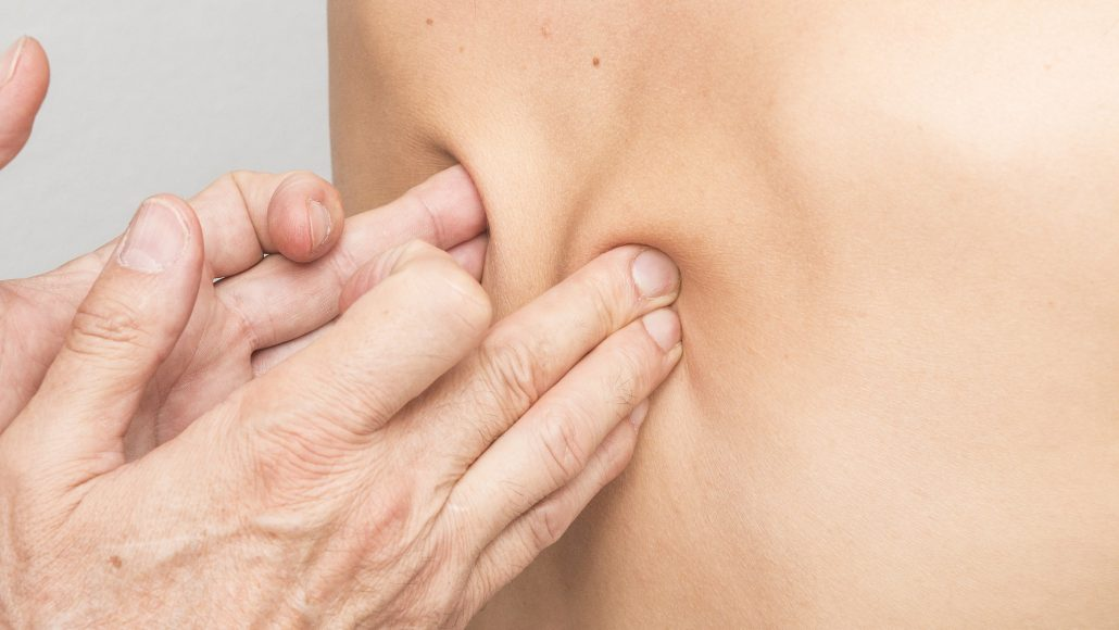 Nowa metoda szybkiej walki z bólem – terapia FDM